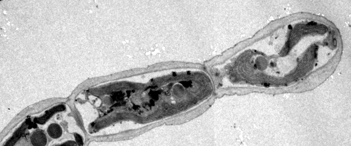 Ectocarpus apical cell - Transmission Electron Microscopy