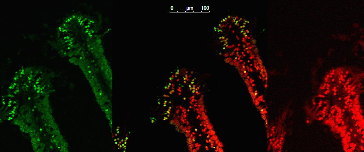 Marquage TUNEL (en vert) des cellules en apoptose dans la branchie de la moule Bathymodiolus puteoserpentis des sources hydrothermales de la Ride Médio-Atlantique (microscopie confocale).