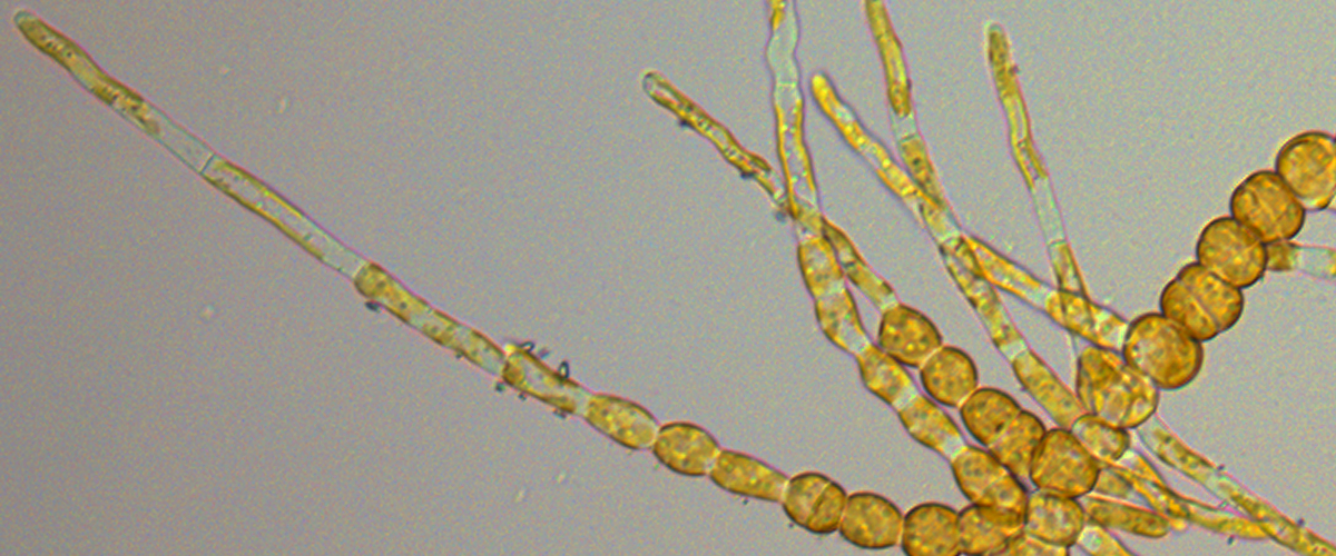 Ectocarpus Sporophyte displaying elongated and round cells