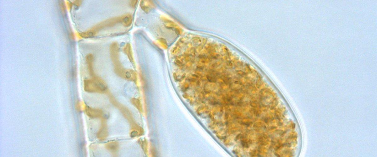 Ectocarpus sp - sporocyste uniloculaire
