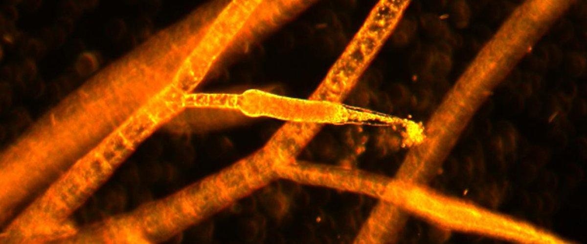 Ectocarpus sp - sporocystes pluriloculaires