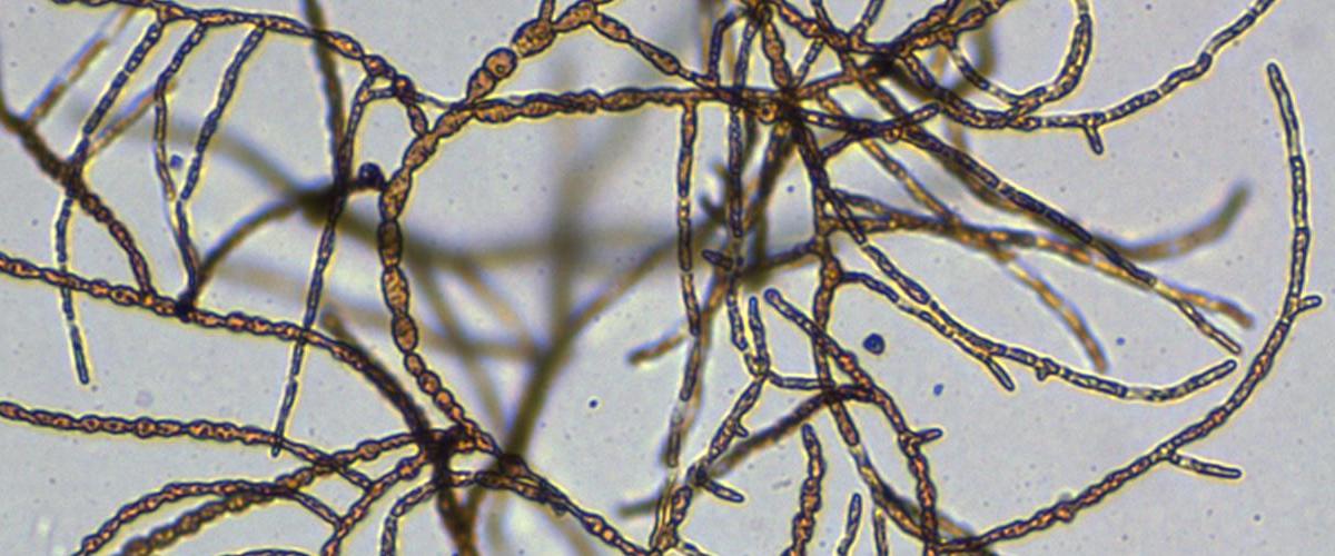 Ectocarpus filaments