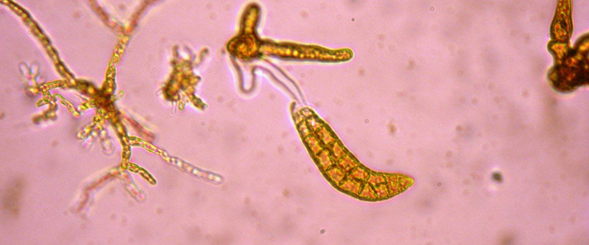 Laminaria digitata - sporophyte (55 jours)