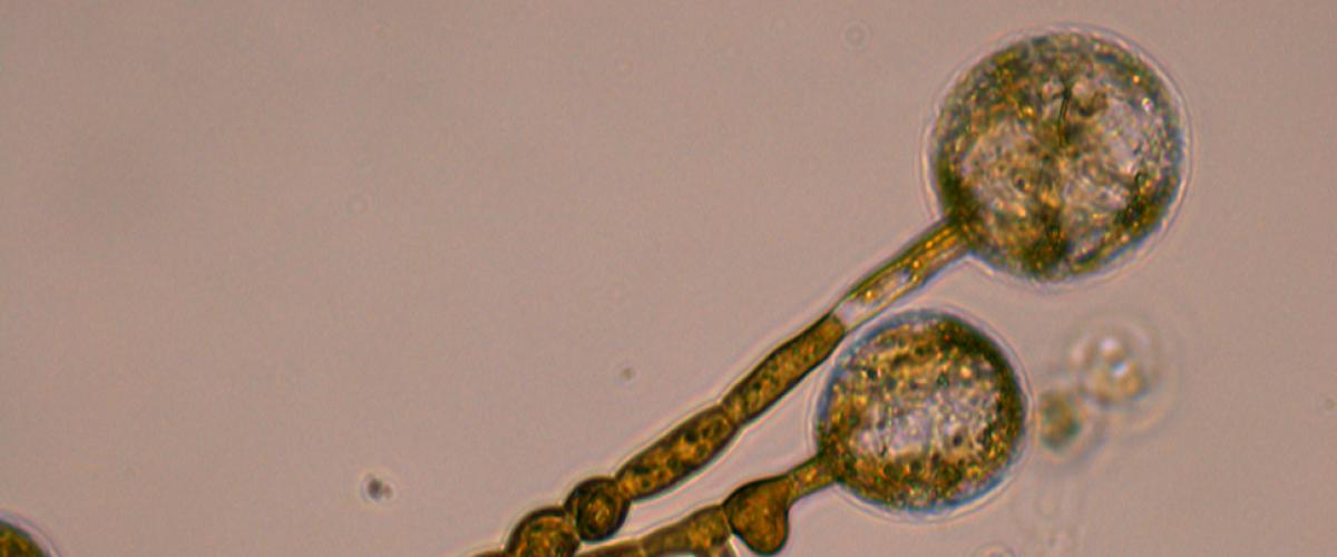 Apical cell rounding after Ltrunculin B treatment